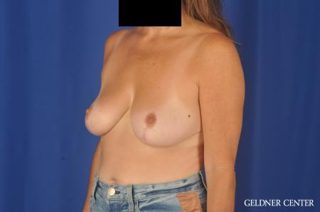 Breast Reduction: Patient 13 - After 4