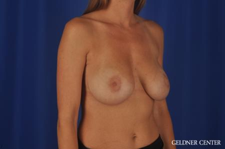 Breast Lift Streeterville, Chicago 5477 -  After Image 2