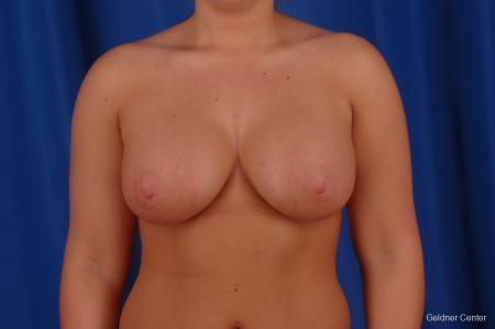 Chicago Breast Augmentation 2633 -  After Image 1