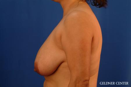 Breast Reduction Hinsdale, Chicago 2630 - Before Image 4