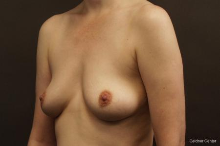 Chicago Breast Augmentation 2413 - Before and After Image 4