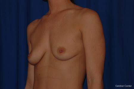 Breast Augmentation Streeterville, Chicago 2071 - Before and After Image 4
