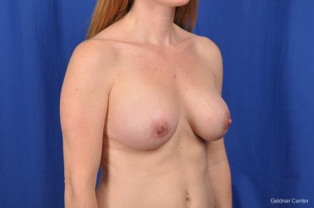 Breast Augmentation Hinsdale, Chicago 2531 -  After Image 3