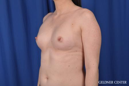Breast Augmentation: Patient 135 - Before and After Image 4