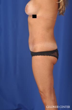 Liposuction: Patient 39 - After Image 3