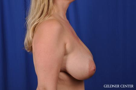 Breast Lift Streeterville, Chicago 8754 - Before Image 2