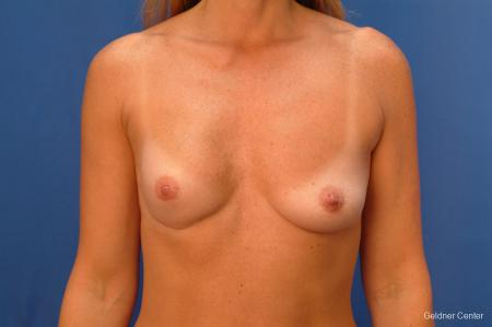 Complex Breast Augmentation Lake Shore Dr, Chicago 2419 - Before Image 1