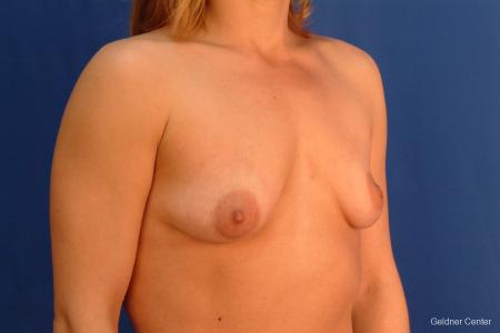 Breast Augmentation Lake Shore Dr, Chicago 2637 - Before Image 3