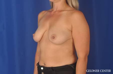 Breast Augmentation: Patient 80 - Before and After Image 4