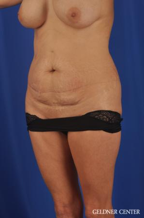 Abdominoplasty Streeterville, Chicago 11873 - Before and After Image 4