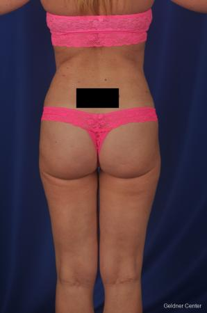 Vaser lipo patient 2069 before and after photos -  After Image 3