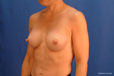 Chicago Breast Augmentation 2635 -  After 5