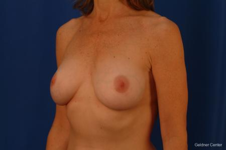 Chicago Complex Breast Augmentation 2445 -  After Image 4