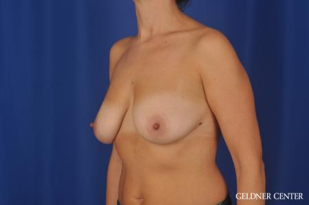 Breast Lift: Patient 48 - Before and After 4