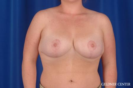Breast Reduction: Patient 34 - After Image 1