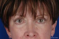 Eyelid Lift Streeterville, Chicago 2396 - After Image