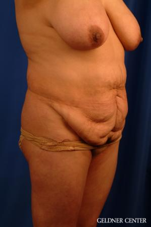 Vaser lipo patient 2629 before and after photos - Before Image 2