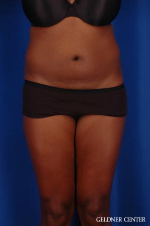 Liposuction: Patient 42 - Before Image 1