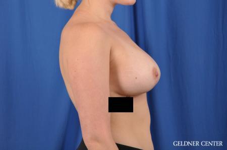 Complex Breast Augmentation: Patient 34 - After Image 3