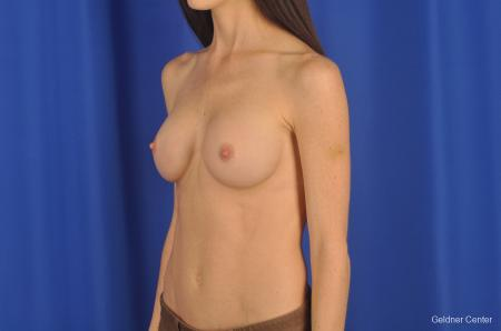 Breast Augmentation Hinsdale, Chicago 2311 -  After Image 5