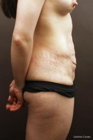 Tummy Tuck: Patient 11 - Before Image 2