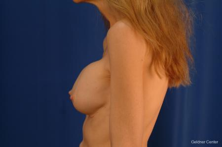 Complex Breast Augmentation Hinsdale, Chicago 2398 - Before Image 4