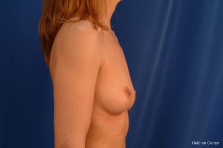 Chicago Breast Augmentation 2634 - Before Image 2