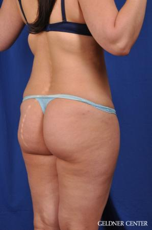 Liposuction: Patient 22 - Before Image 4