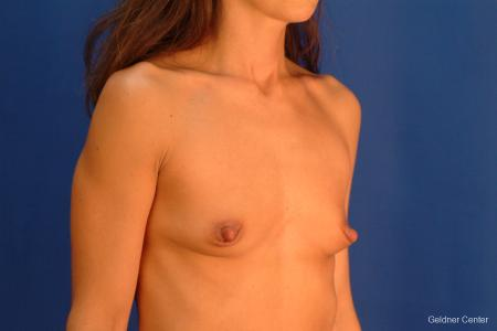 Chicago Breast Augmentation 2521 - Before Image 3
