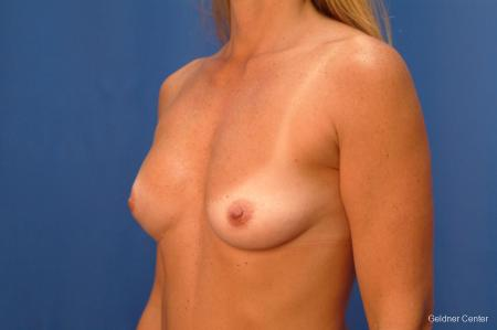 Complex Breast Augmentation Lake Shore Dr, Chicago 2419 - Before and After Image 3