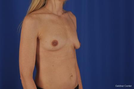 Chicago Breast Augmentation 6653 - Before Image 2