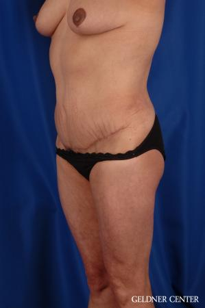 Vaser lipo patient 2629 before and after photos -  After Image 5