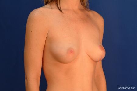 Chicago Breast Lift 2537 -  After Image 3