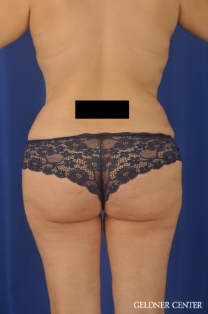 VASER® Lipo: Patient 13 - After Image 4
