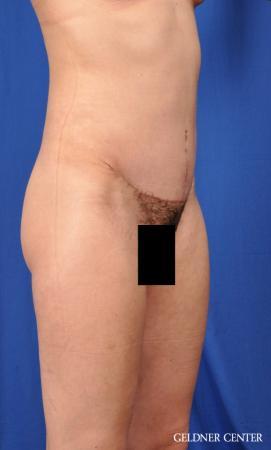 Liposuction: Patient 41 - After Image 2