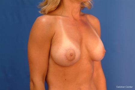 Breast Augmentation Lake Shore Dr, Chicago 2637 -  After Image 3