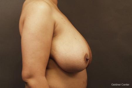 Chicago Breast Reduction 2375 - Before Image 2
