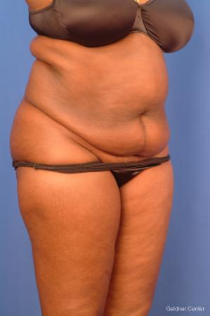 Vaser lipo patient 2540 before and after photos - Before Image 3