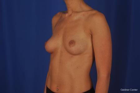 Chicago Complex Breast Augmentation 2381 - Before and After Image 4