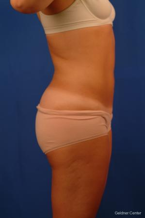 Liposuction: Patient 12 - After Image 3