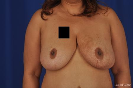Chicago Breast Reduction 2375 - After Image