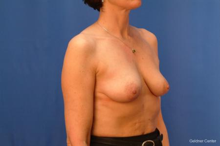 Breast Augmentation Streeterville, Chicago 2508 - Before Image 3