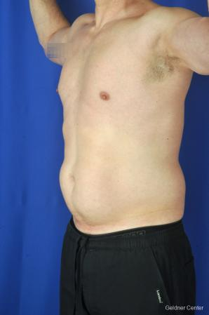 Liposuction For Men: Patient 9 - Before and After Image 5