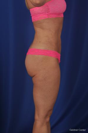 Vaser lipo patient 2069 before and after photos -  After Image 2
