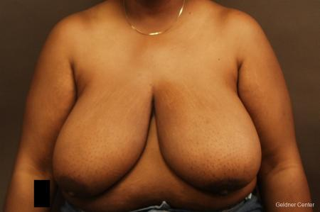 Chicago Breast Reduction 2406 - Before Image