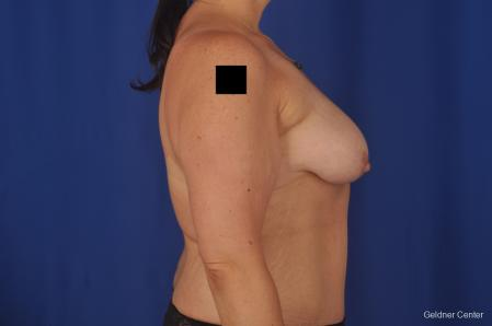 Breast Lift: Patient 18 - Before Image 3