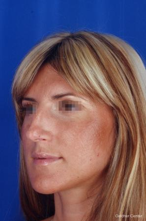 Rhinoplasty: Patient 5 - Before and After Image 4