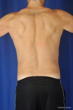Liposuction For Men: Patient 7 - After Image 5