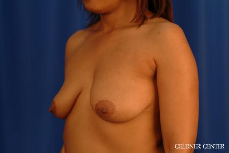 Breast Lift: Patient 54 - Before and After Image 4