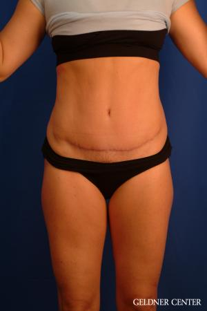 Tummy Tuck: Patient 34 - After Image 1